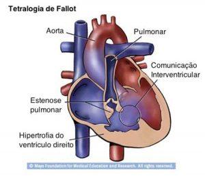 centro-de-cardiopatias-congenitas